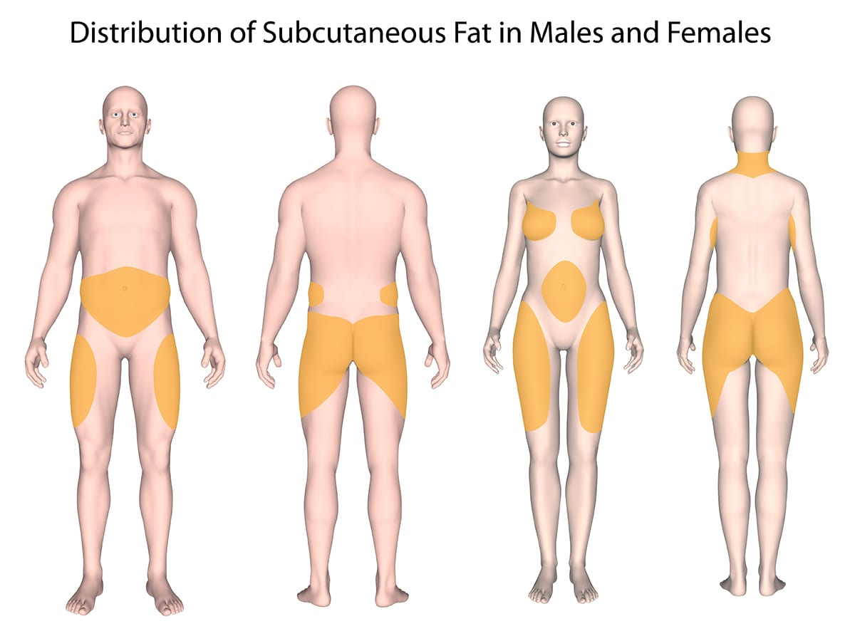 Subcutaneous Fat Distribution